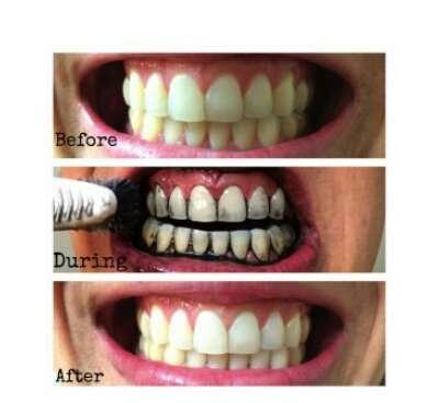 خرید پودر زغال سفید کننده ی دندان میراکل مخصوص دندان های زرد