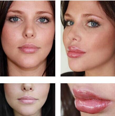 خرید پستی  حجم دهنده ی لب lip pump